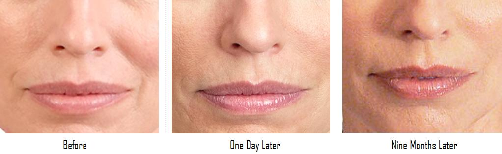 Juvederm Results Picture